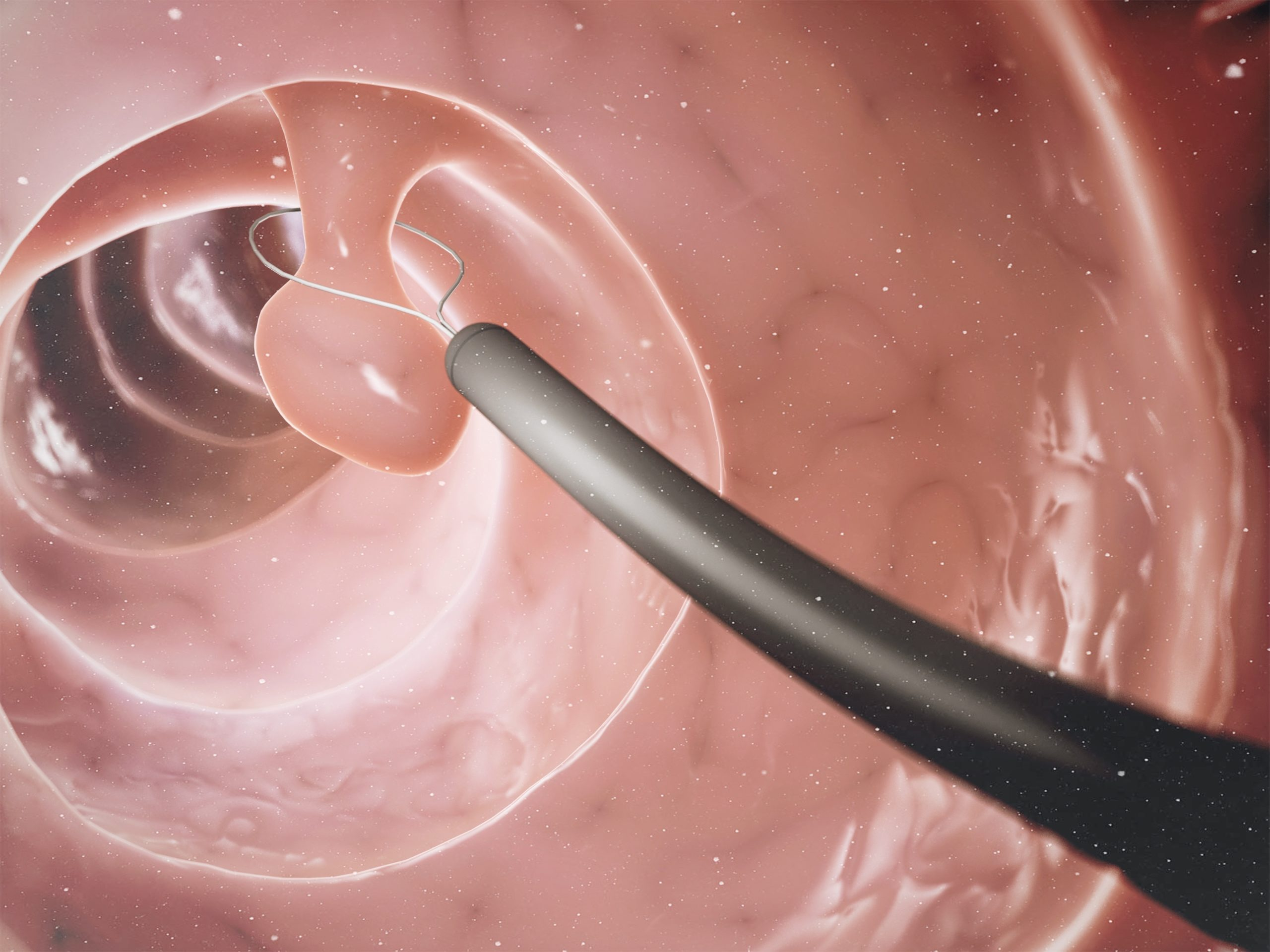 Endoskopiskolen - TET polyppkurs